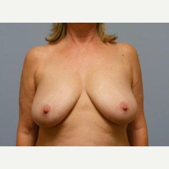 Breast Lift before 1596179