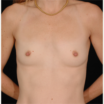 35 year old woman treated with Breast Augmentation before 3052669