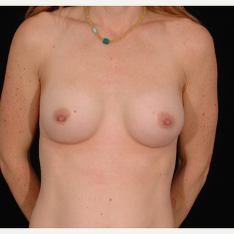 35 year old woman treated with Breast Augmentation after 3052669