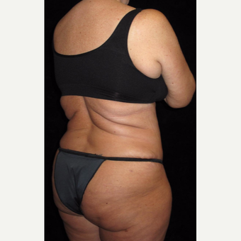45 year old woman treated with Liposuction after 3251644