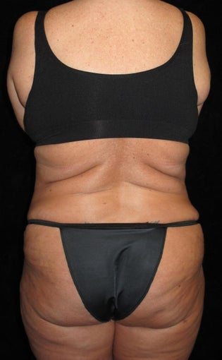 45 year old woman treated with Liposuction 3251644