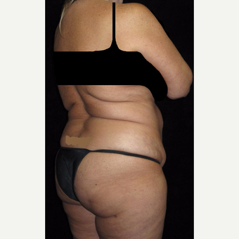 45 year old woman treated with Liposuction before 3251644