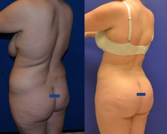 Brazillian Butt Lift (Liposuction with Fat Transfer) before 1067718