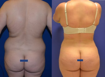 Brazillian Butt Lift (Liposuction with Fat Transfer) after 1067718