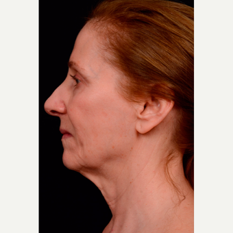 55-64 year old woman treated with Facelift before 3663584