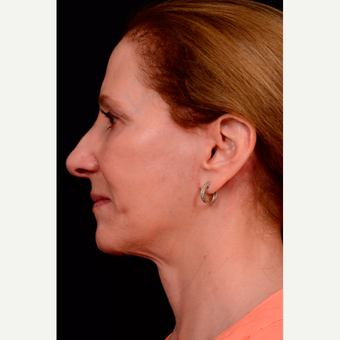 55-64 year old woman treated with Facelift after 3663584