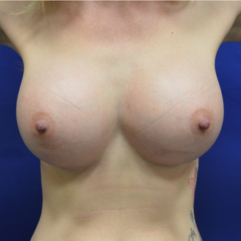 25-34 year old woman treated with Breast Augmentation after 3340366