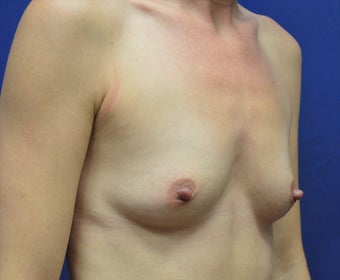 25-34 year old woman treated with Breast Augmentation 3340366
