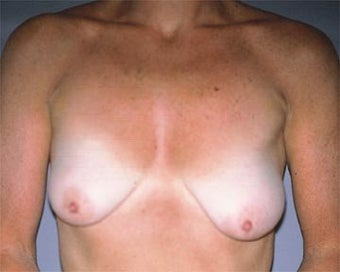 Breast Asymmetry Correction before 281315