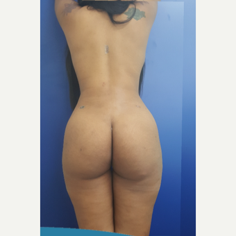 25-34 year old woman treated with Liposculpture after 3749812
