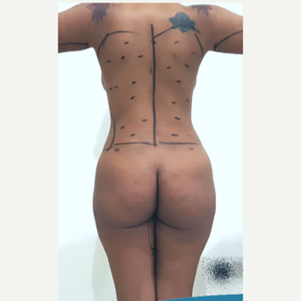 25-34 year old woman treated with Liposculpture before 3749812