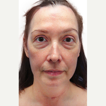 48 year old woman treated with lower blepharoplasty + fat removal before 2870075