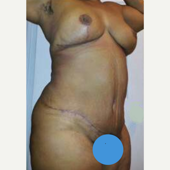 50 year old woman treated with Mommy Makeover after 2215818