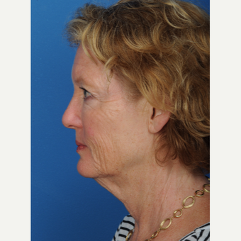 57 year old woman treated with a deep plane Facelift before 3466627