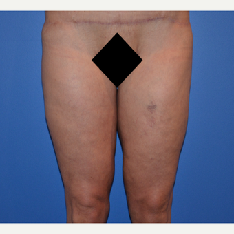 35-44 year old woman treated with Thigh Lift after 3075752
