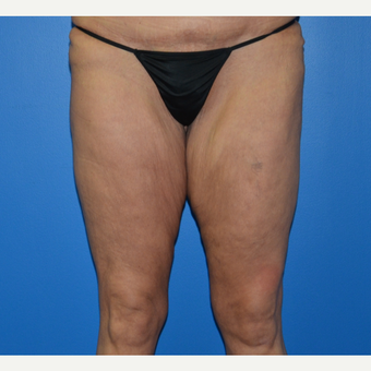 35-44 year old woman treated with Thigh Lift before 3075752