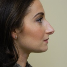 25-34 year old woman treated with Rhinoplasty before 3506046