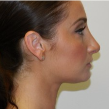 25-34 year old woman treated with Rhinoplasty after 3506046