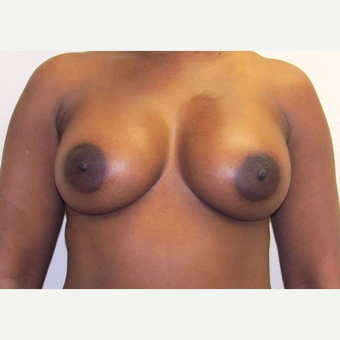 42 year-old woman treated with Memory Shape, Silicone Gel Breast Implants. after 3358551