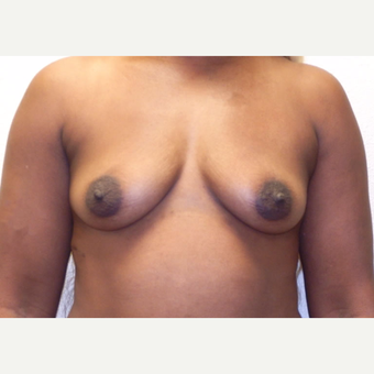 42 year-old woman treated with Memory Shape, Silicone Gel Breast Implants. before 3358551