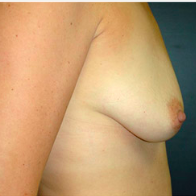 35 year old woman treated with Breast Lift with Implants before 3665951