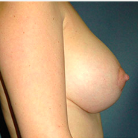35 year old woman treated with Breast Lift with Implants after 3665951