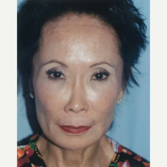 Dr. Lu-Jean Feng combines treatments to effectively stimulate collagen production before 2278684