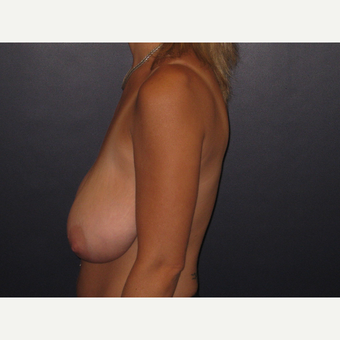 35-44 year old woman treated with Breast Reduction before 3033274