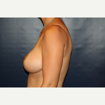 35-44 year old woman treated with Breast Reduction after 3033274