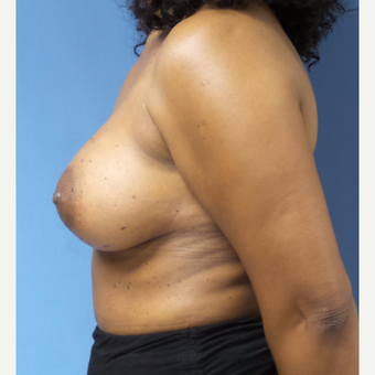 45-54 year old woman treated with Breast Augmentation after 3026685