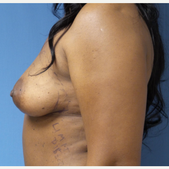 45-54 year old woman treated with Breast Augmentation before 3026685