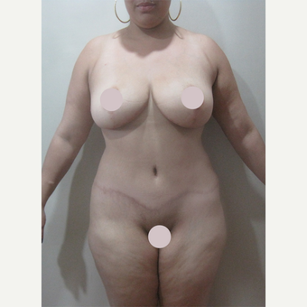 25-34 year old woman treated with Tummy Tuck after 2728376