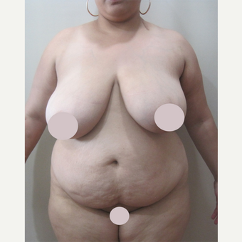 25-34 year old woman treated with Tummy Tuck before 2728376