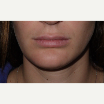 Young woman treated with Juvederm Lip Augmentation after 3001820