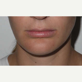 Young woman treated with Juvederm Lip Augmentation before 3001820