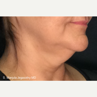 Immediate Non-Surgical Neck Lift with Ultherapy before 3656337