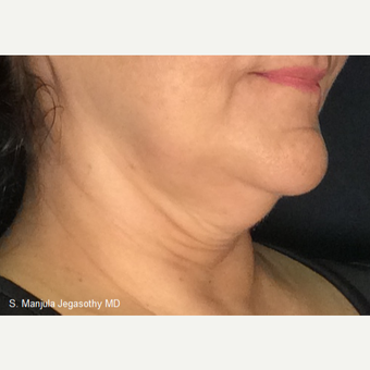 Immediate Non-Surgical Neck Lift with Ultherapy after 3656337