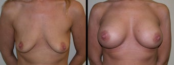 Breast Augmentation before 1231581
