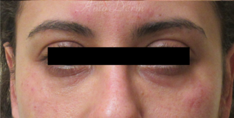 35-44 year old woman treated with Restylane after 3835936