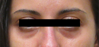 35-44 year old woman treated with Restylane before 3835936