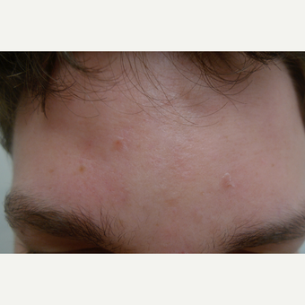 Peels for acne can be effective. after 3731853
