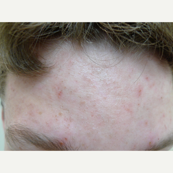 Peels for acne can be effective. before 3731853