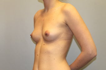 28 year old female who desires fuller breasts 1381934