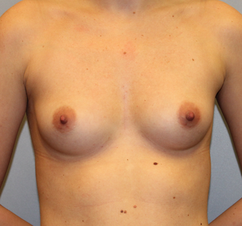 28 year old female who desires fuller breasts before 1381934