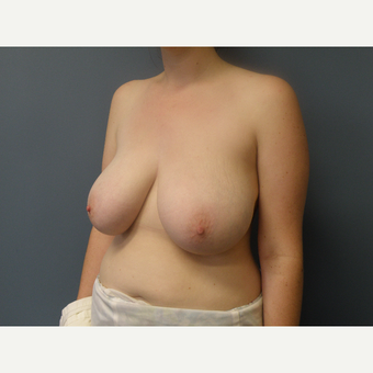 18-24 year old woman treated with Breast Reduction before 3034120