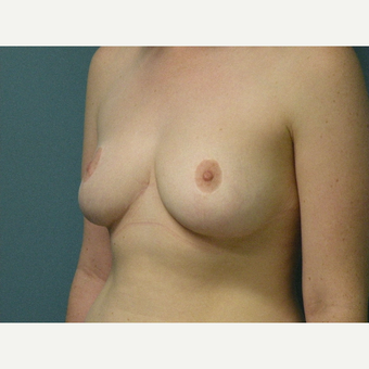 18-24 year old woman treated with Breast Reduction after 3034120
