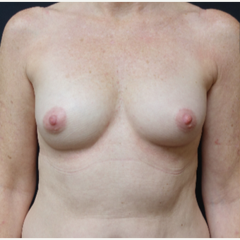 35-44 year old woman treated with Mentor Breast Implants before 3280315