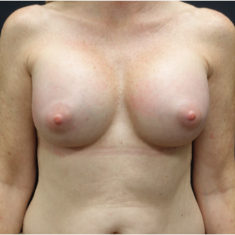 35-44 year old woman treated with Mentor Breast Implants after 3280315
