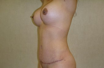 25-34 year old woman treated with Mommy Makeover after 3266401