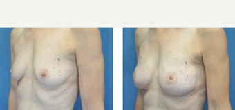 35-44 year old woman treated with Breast Lift before 3776514
